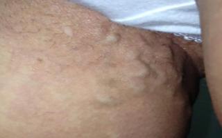 Тромб в паху у женщин симптомы