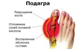 Уплотнение на ноге под кожей с покраснением