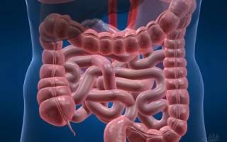 Дисплазия кишечника симптомы