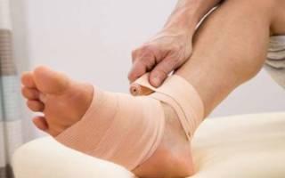 Вывих ноги в районе стопы что делать