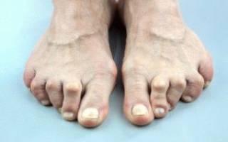Отек большого пальца на ноге как лечить