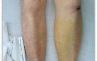 Тромбы в венах на ногах лечение