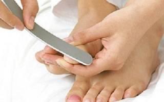 Отслоение ногтевой пластины на ногах лечение