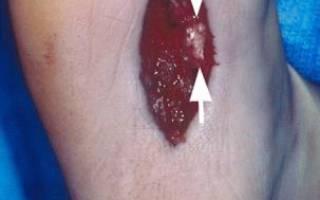 Болезнь леддерхозе на левой стопе лечение
