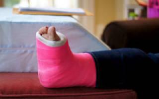 Как ускорить заживление перелома ноги