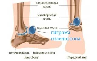 Гигрома на щиколотке лечение