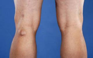 Почему болят вены на ногах под коленями