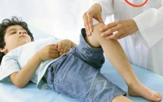 Ребенок жалуется на боль в колене