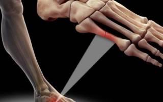 Трещина плюсневой кости стопы лечение