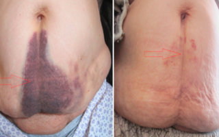 Гематома после операции на ноге