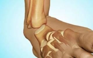 Как лечить вывих ноги в щиколотке