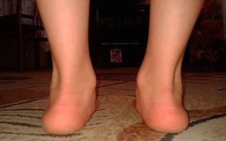 Плоско вальгусная стопа у ребенка лечение