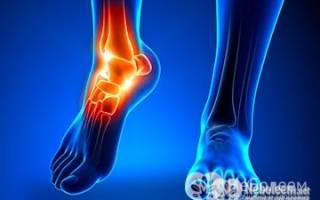 Болит нога в щиколотке при ходьбе