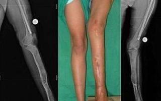 Фиброзная дисплазия большой берцовой кости