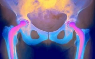 Рак шейки бедра симптомы