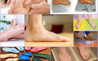 Как бороться с плоскостопием у взрослых