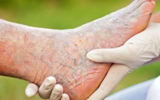 Симптомы болезни сосудов нижних конечностей