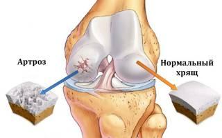 Болит коленный сустав как облегчить боль