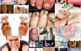 Причины возникновения грибка на ногтях ног