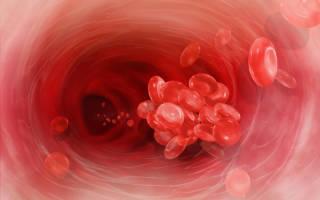 Симптомы тромбообразования