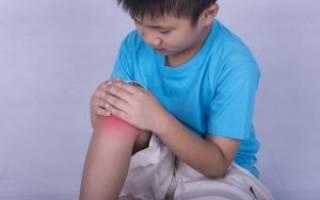 Ювенильный ревматоидный артрит лечение