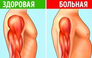 Атрофия ягодичных мышц фото