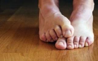 Онемел большой палец на левой ноге причины