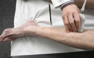 Тромбоз глубоких вен голени симптомы лечение прогноз