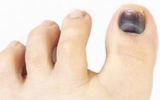 Ушиб ногтя на ноге что делать