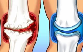 Что пить при болях в суставах ног