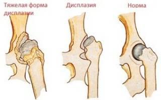 Боль в тазобедренном суставе отдающая в колено