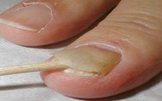 Отслоился ноготь на большом пальце ноги
