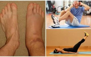 Лечебная физкультура при артрозе голеностопного сустава