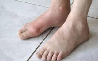Болит верхняя часть стопы в середине