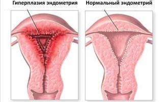 Железистая дисплазия эндометрия