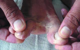 Преет между пальцами ног что делать