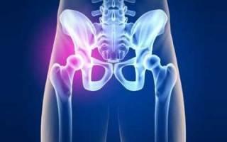 Как обезболить тазобедренный сустав в домашних условиях