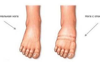 Почему правая нога больше левой