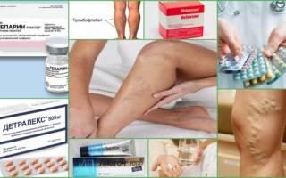 Таблетки при тромбофлебите нижних конечностей
