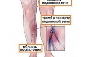 Где образуются тромбы в ногах