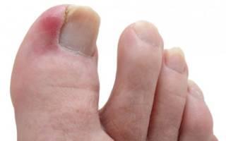 Воспалился большой палец на ноге что делать