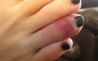 Ушиб пальца на ноге симптомы фото