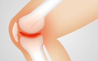 Болит колено с внешней стороны при сгибании