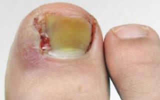 Чем лечить панариций околоногтевой на ногах
