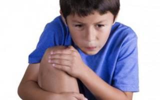 Боль в колене у ребенка причины