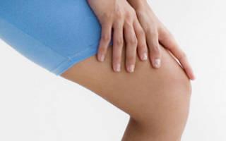 Онемение ноги выше колена причины