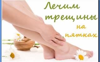 Мази для заживления трещин на пятках ног