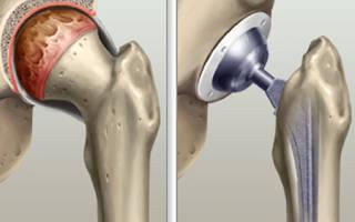 Лфк после протезирования тазобедренного сустава