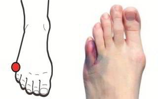 Ушиб мизинца на ноге как лечить