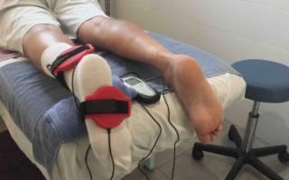 Костная мозоль на пальце ноги